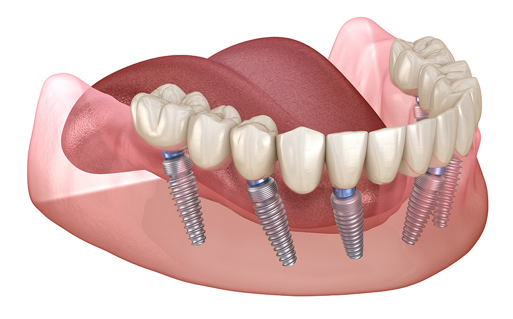 Getting All On 6 Dental Implants Is Better For You